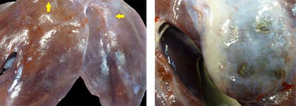 Lesiones cicatrizales en el higado y vesícula