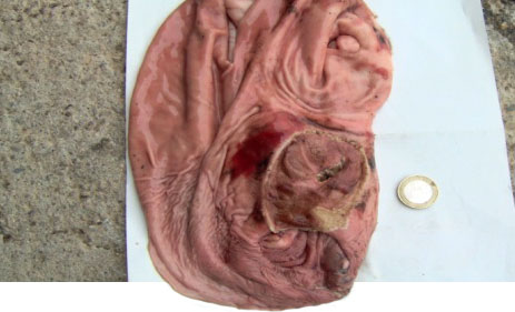 Úlcera con hemorragia gástrica aguda