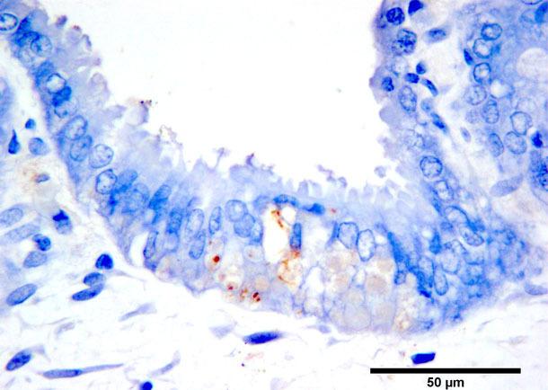 Coloration marron par immunohistochimie de l'antigène PCV2b dans des trophoblastes nécrotiques. Chromogène diaminobenzidine et contraste à l'hématoxyline.