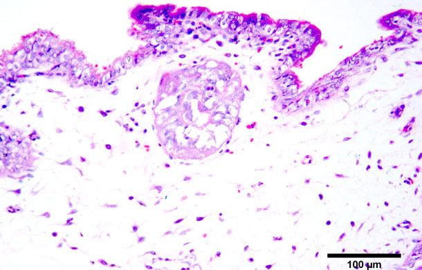 Nécrose coagulante sur les trophoblastes  Coloration hématoxyline-éosine