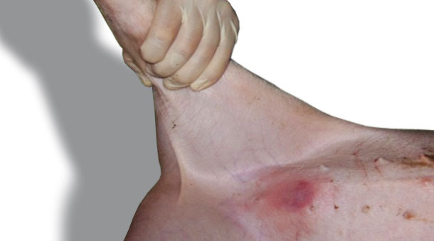 Réaction typique d'érythème observée 24 h après une application sur la peau de l'abdomen