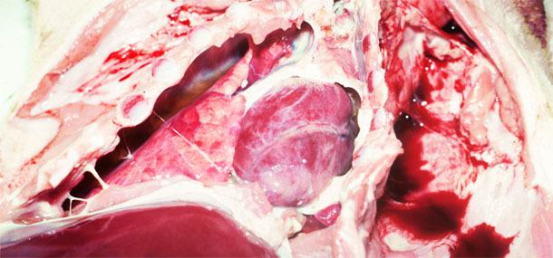 Pleurésie fibrineuse chronique