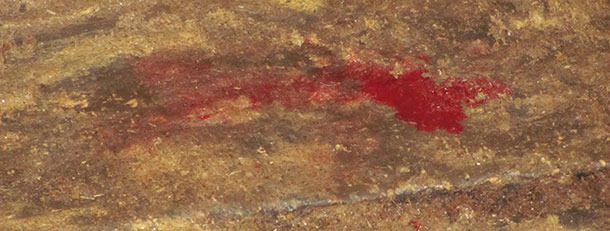 Féces aqueuses avec contenu sanglant