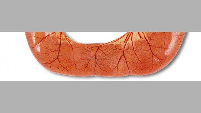 L'autopsie de cas de diarrhée par ETEC montre souvent des anses de l'intestin grêle dilatées, fines et congestionnées, remplies de diarrhée aqueuse de couleur jaune