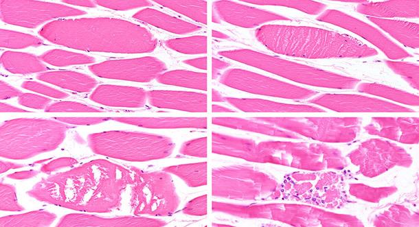 Différentes étapes de dégénérescence/nécrose des fibres musculaires