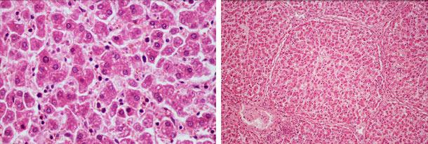 Dégénérescence hépatique hydropique diffuse et désorganisation hépatique diffuse
