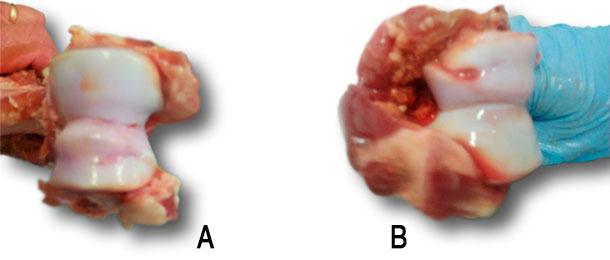 Osteocondrosis del cóndilo humeral