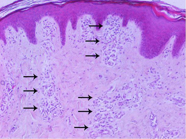 Analyse histopathologique de la peau : augmentation de la vascularisation principalement sur le derme superficiel et moyen