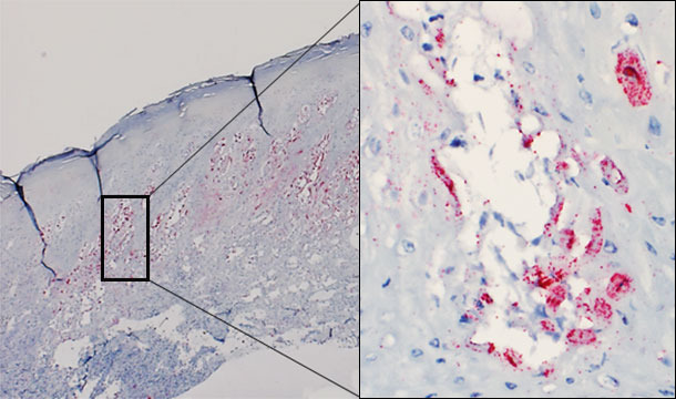 Biopsia cutánea de una vesícula de un cerdo afectado