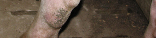 Membre postérieure d'une nullipare