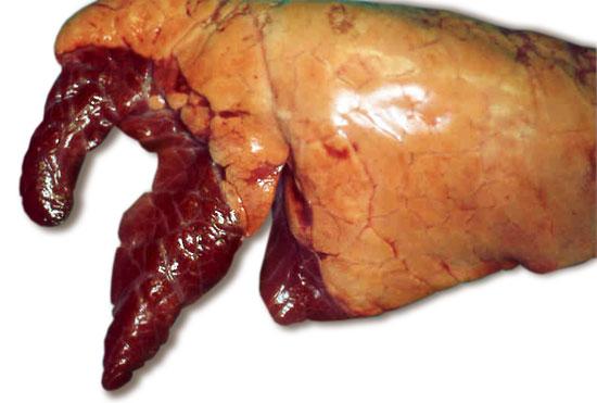 articles tests de diagnostic pour la pneumonie