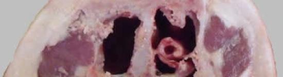 Rhinite-05-4