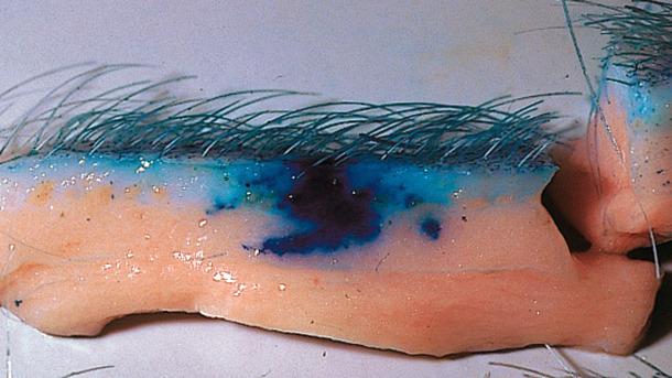 La technologie sans aiguille améliore la dispersion des vaccins dans les tissus.