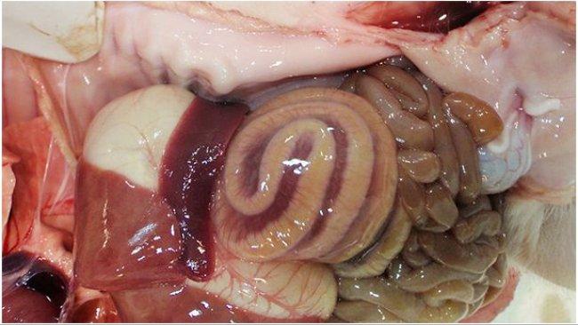 L'œdème de mésocolon est une lésion typique des cas d'ICD