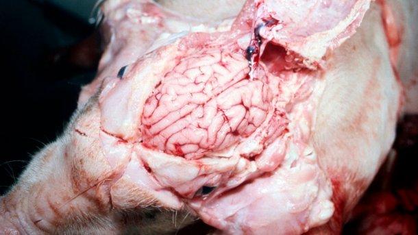 Figure 5. Cerveau visiblement humide
