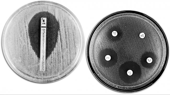 Techniques classiques d'évaluation de la résistance aux antibiotiques. A gauche on voit un E-TEST qui permet de mesurer la concentration minimum d'antibiotique qui empêche la croissance bactérienne. A droite on voit un antibiogramme où on observe différentes zones d'inhibition de la croissance dues aux antibiotiques.