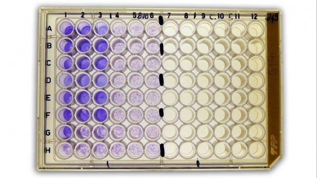 Figure 2b: Séroneutralisation(SN) pour la détection des anticorps contre le virus de la diarrhée virale bovine (BVDv) dans le sérum.