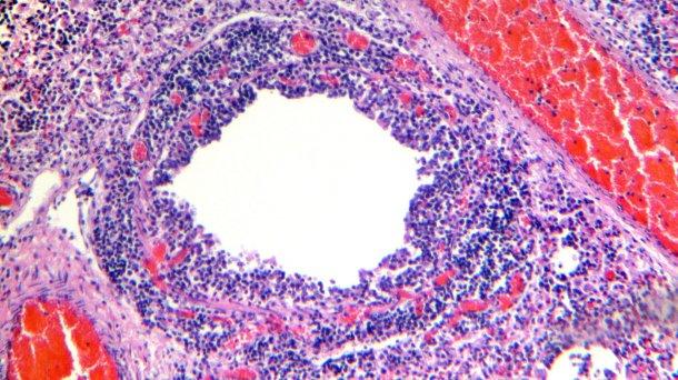 Figure 4. Bronchiole montrant la desquamation et la nécrose de l'épithélium respiratoire, ainsi qu'une infiltration lymphocytaire marquée de la lamina propria et de la sous-muqueuse.