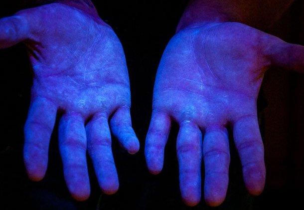 Photo 6. Matière fluorescente sous ultraviolets (UV) pour démontrer que le produit couvre toutes les mains. Source www.glogerm.com